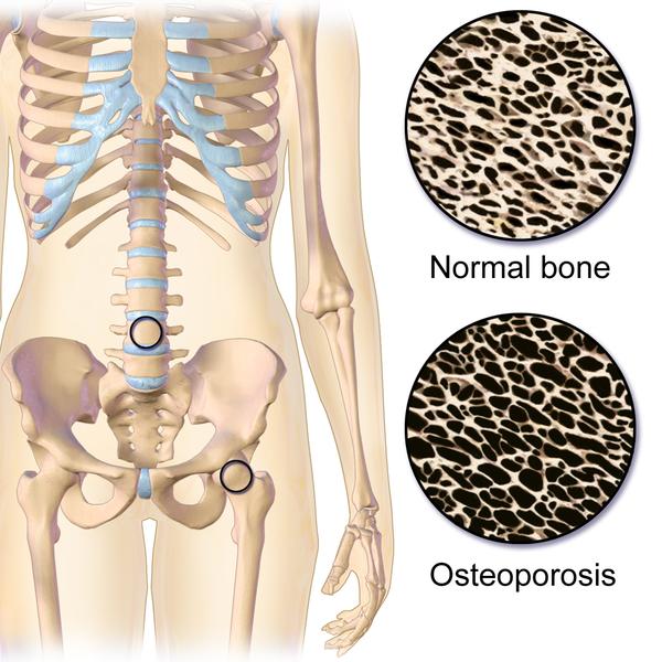 Osteoporosis-Blausen-Medical.png