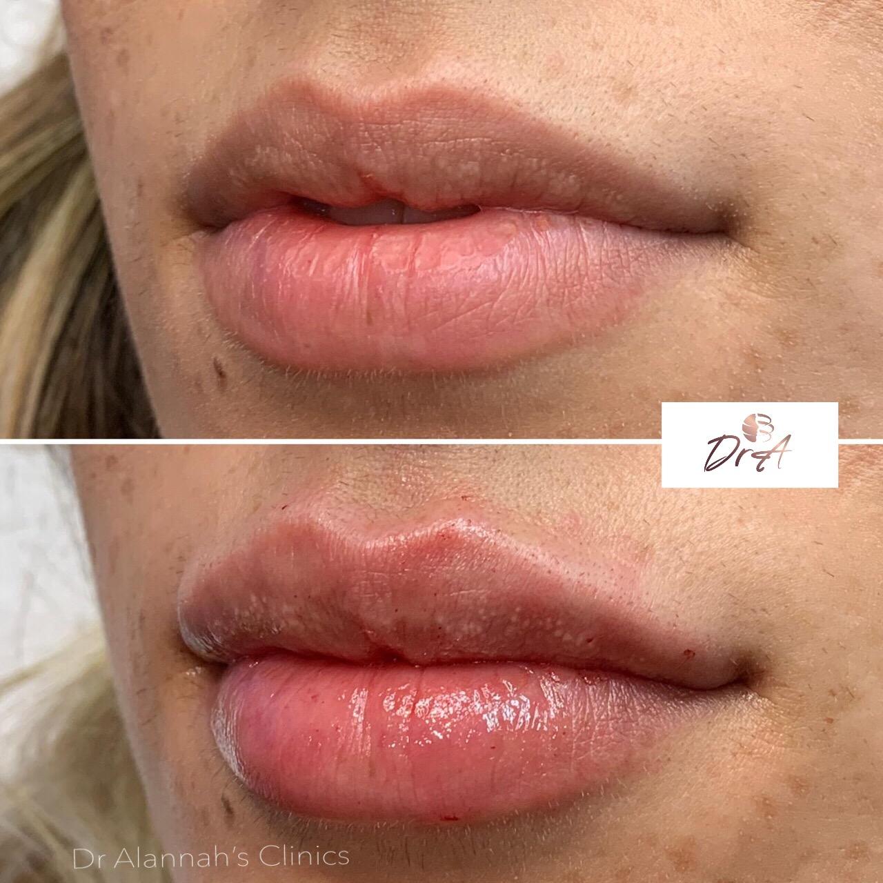 full lips.JPG