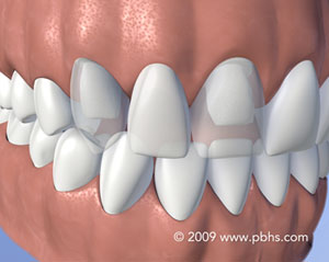 Fixed Bridge - A fixed bridge is a connected set of replacement teeth. For support, it is cemented into position on top of the teeth adjacent to the empty space. The protective outer layer of these teeth is usually removed or ground down prior to attaching the bridge.