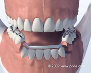 Metal Partial - A less fragile option is a removable partial denture cast in metal and plastic. It is held in place by wire clips. A removable partial denture can be removed and reinserted when required by the patient.