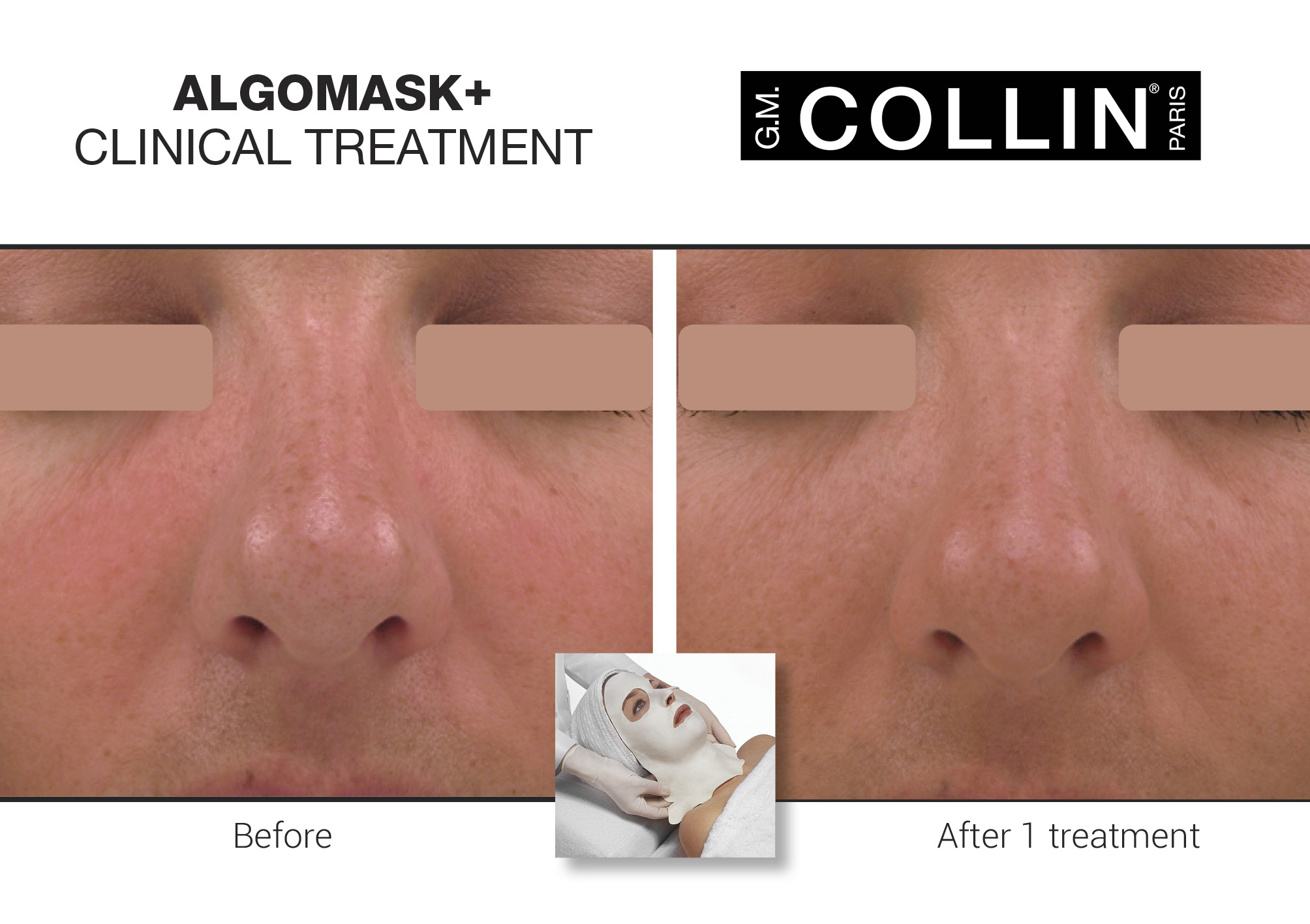 Algomask Cooling Thermo-Corrective Mask Facial Treatment - Exclusive to G.M. collin, this enriched treatment provides immediate and long-lasting hydration. Its thermo-cooling effect on the skin makes it a remarkable decongesting treatment ideal for sensitive, rosacea, couperosed and acne prone skin. It provides instant radiance by hydrating, soothing and brightening the skin while minimizing redness.$88 (60-90 minutes)
