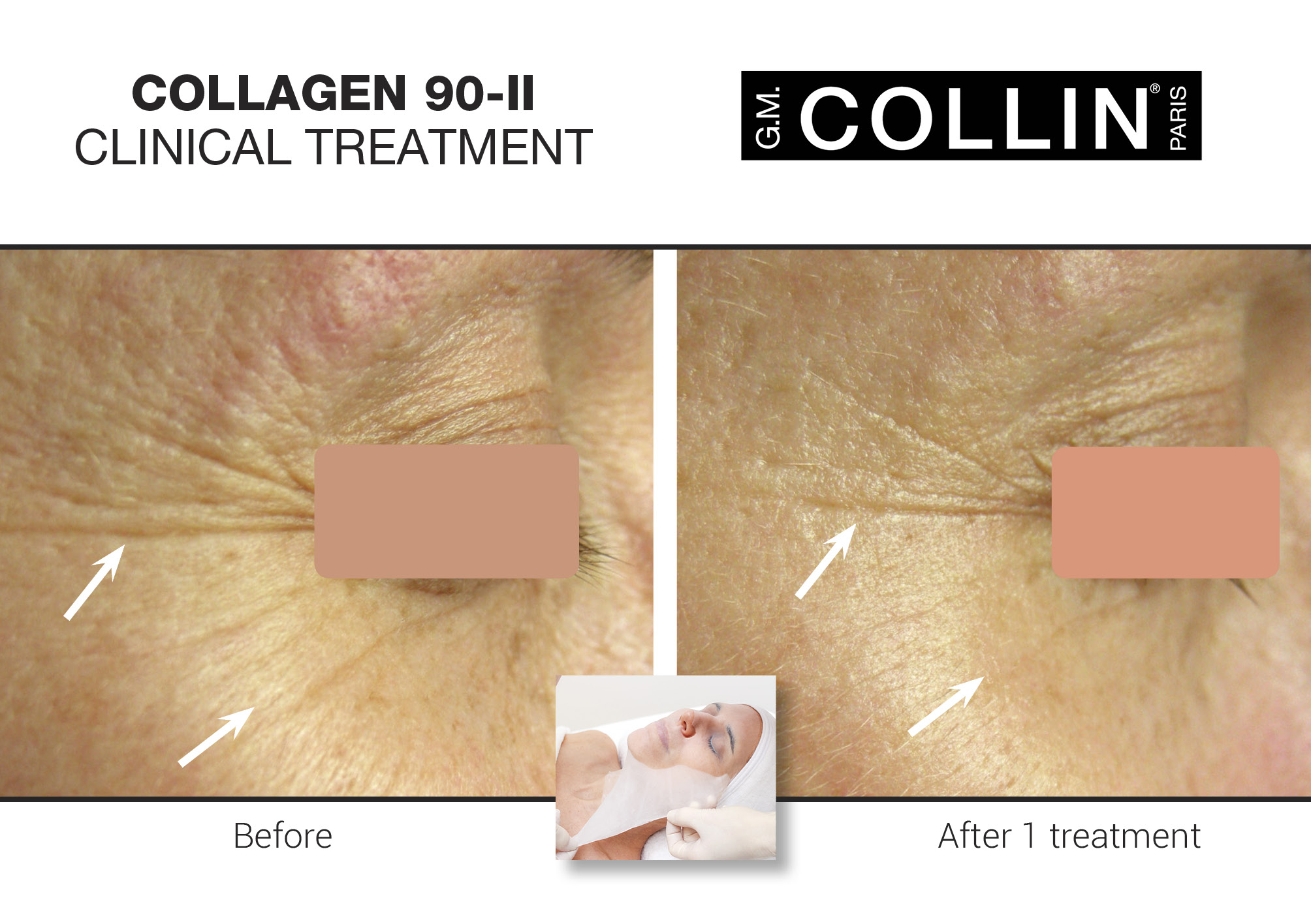 Collagen 90-II Anti-Aging Dermo-Corrective Mask Facial Treatment - Exclusive to G.M. Collin, this intensive anti-aging treatment hydrates, rejuvenates and reconfigures the skin's surface to subdue the visible signs of aging. An undisputable and scientifically proven treatment to fight the signs of skin aging. It improves the overall complexion by minimizing the appearance of lines and wrinkles. Cocoons and quenches the skin, leaving it well hydrated and radiant.$145 (120 minutes)