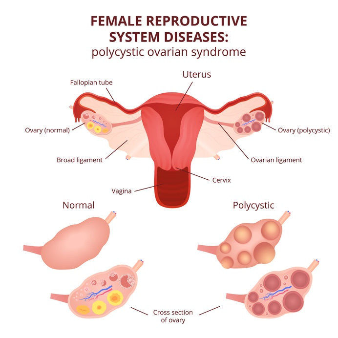 polycystic_ovary_syndrome_PCOS56801820_M.jpg