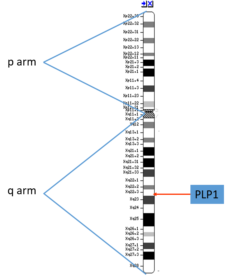 Figure 1. The  PLP1  gene is on the long arm (the p-arm) of the X chromosome.  Giemsa banding (or G-banding) is a technique used to make a characteristic banding pattern appear on each of the chromosomes. The  PLP1  gene is located in a band on the X chromosome called Xq22.3.