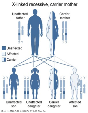 Figure 3. X-linked recessive inheritance.  PMD has an X-linked recessive inheritance pattern. It is X-linked because the PLP1 gene is on the X chromosome. It is called recessive because if there is an affected copy of the gene on one chromosome and an unaffected copy on the X chromosome that is paired with it in a female, the unaffected copy is able to compensate for the affected copy and the female does not have PMD. This diagram of X-linked recessive inheritance shows that an unaffected father and a mother who is a carrier (has an unaffected copy of the PLP1 gene on one of her X chromosomes and an affected copy on the other) will have (shown left to right) the following probabilities for their offspring: ¼ (25%) unaffected son, ¼ (25%) unaffected daughter (not a carrier), ¼ (25%) carrier daughter, and ¼ (25%) affected son.