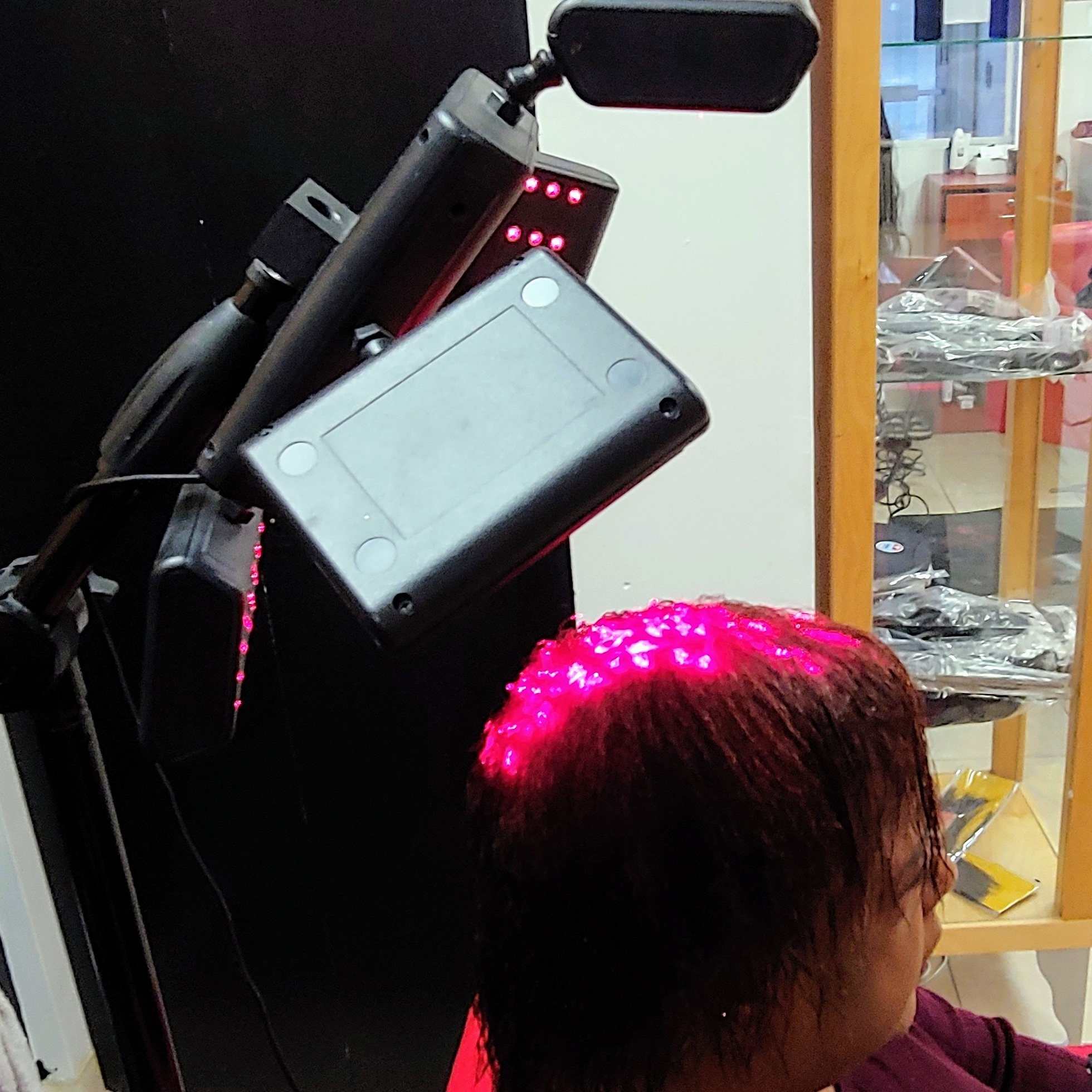 Female Pattern Balding Alopecia    Cool Low Light Laser Treatment    Safe Effective FDA Approved