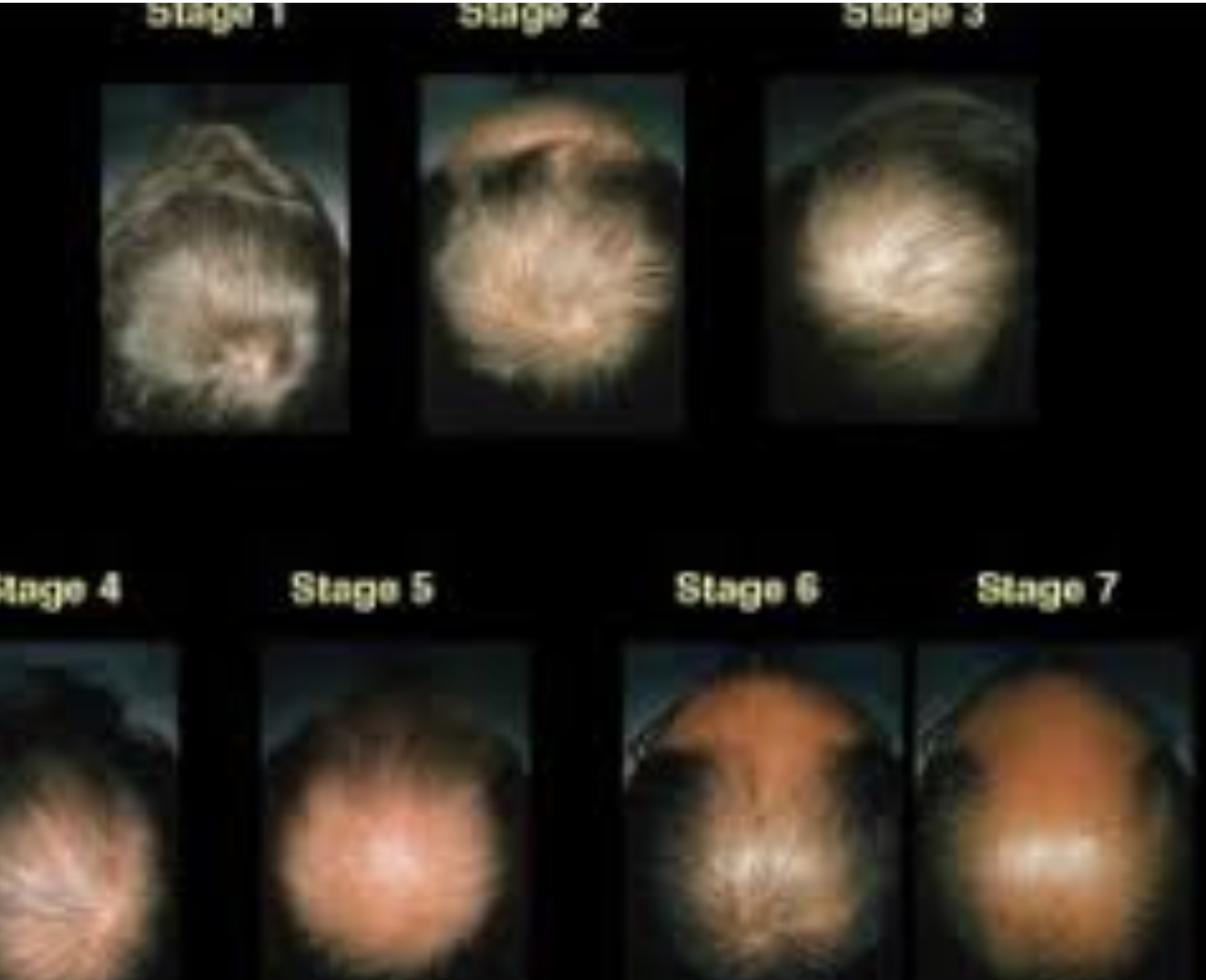 Untreated Phases of Male Pattern Balding