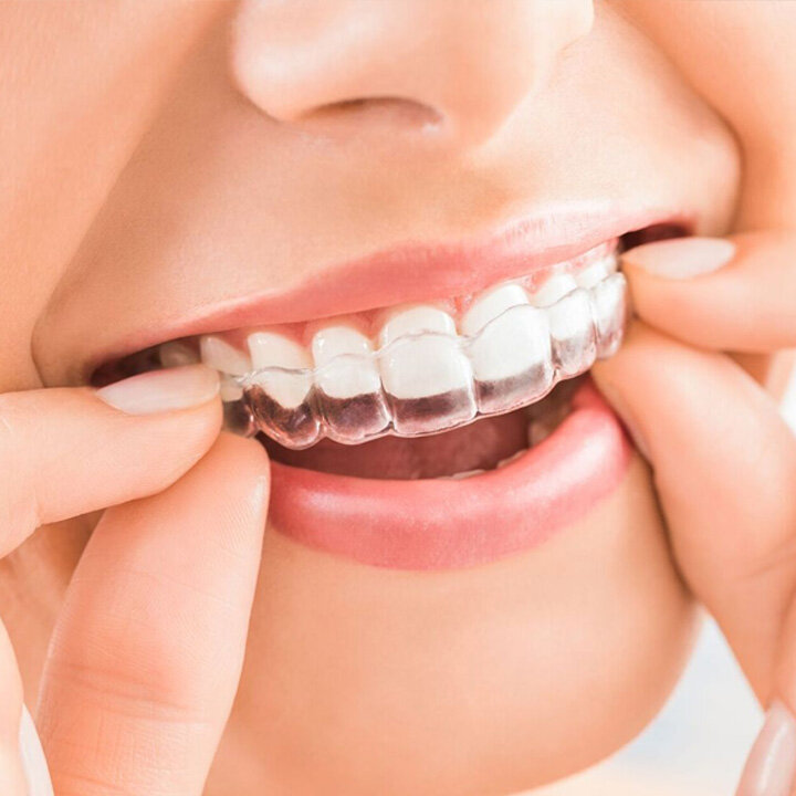 FAQ's - How long does it take to straighten your teeth?As with any teeth straightening procedure, the time taken depends on the complexity of the case, but as a rule of thumb the treatment time is generally comparable to that of traditional braces. Although in some straight forward cases we can see the desired results in as little as 6 months.Are the Invisalign® braces painful to wear?Generally, patients find the Invisalign clear aligners much more comfortable than traditional metal braces because the aligners are trimmed exactly to your gum line to ensure a snug fit. Some people may experience slight unfamiliar pressure for a few days when they put in a new aligner, but this is totally normal and just means that the process is working. We find that this mild discomfort usually goes away in a couple of days.Can you eat and drink normally after having Invisalign fitted?Of course, that's the beauty of Invisalign®. The aligners are made to be easily removed so that you can eat and drink whatever you like and also to facilitate your regular brushing and flossing routine. Furthermore, if you or your teen has an active lifestyle, rest assured the aligners can be removed before playing any contact sport.