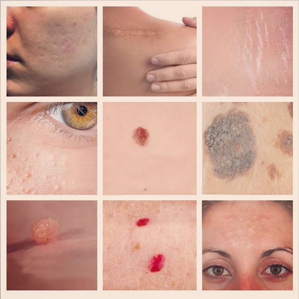 Skin Lesion Removal - BYE BYE IMPERFECTIONSDo you have an unwanted skin growth or an ugly scar? Using our state of the art Plasma Pen device, we can target skin lesions such as skin tags, scars, broken capillaries, stretch marks, hyper-pigmentation and more. Say good bye to skin imperfections and lesions that can break your confidence and say hello to your natural beautiful skin!