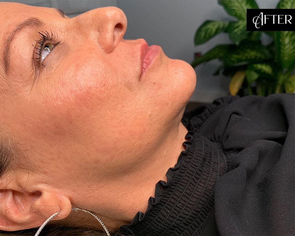 Skin Craft Beauty - Lip Enhancement