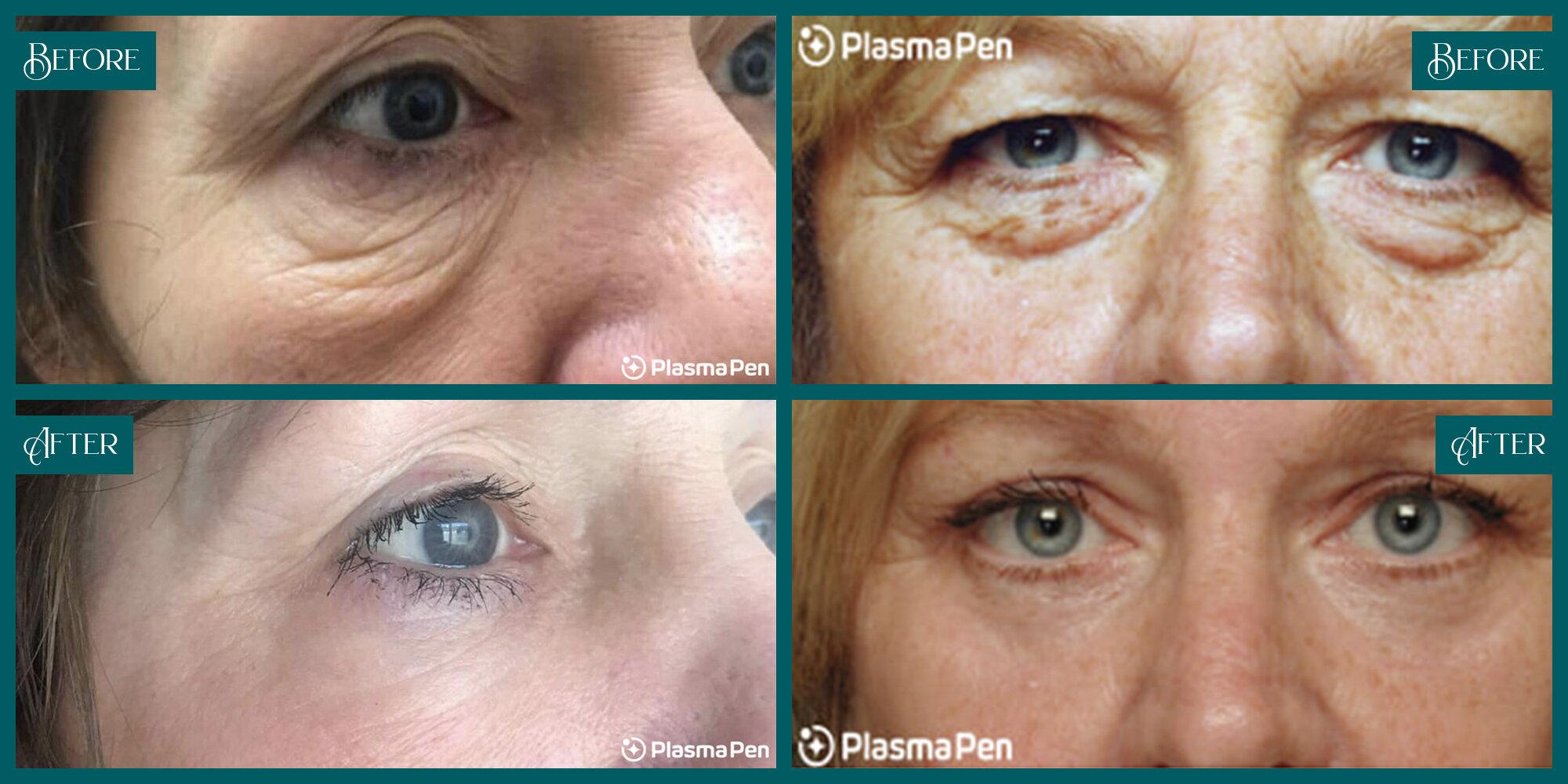 Skin Craft Beauty - PlasmaPen