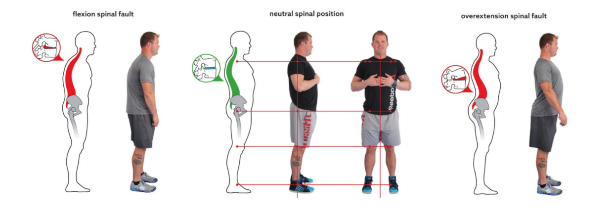 Figure 1: Neutral spinal position in relation to common spinal faults.  (Starrett, Kelly. Becoming a Supple Leopard. (2015) Pages 56,58,59)