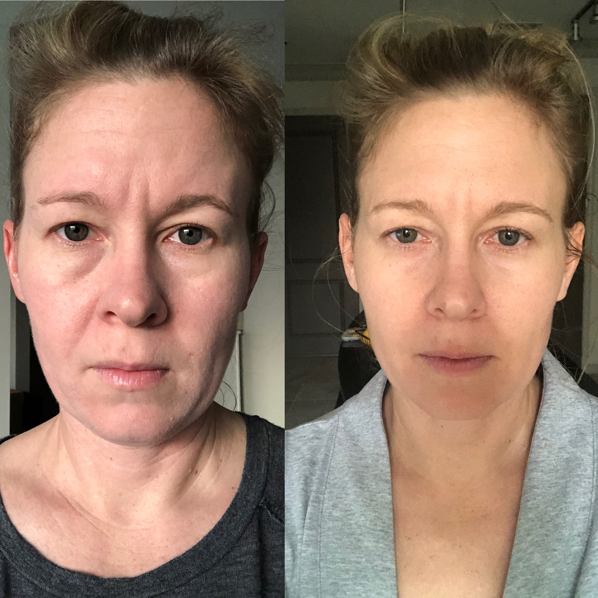 Pre- Surgery:  Left  1 Day Post:  Right Same light, same time of day, same camera.