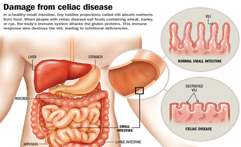 celiac-disease.jpg