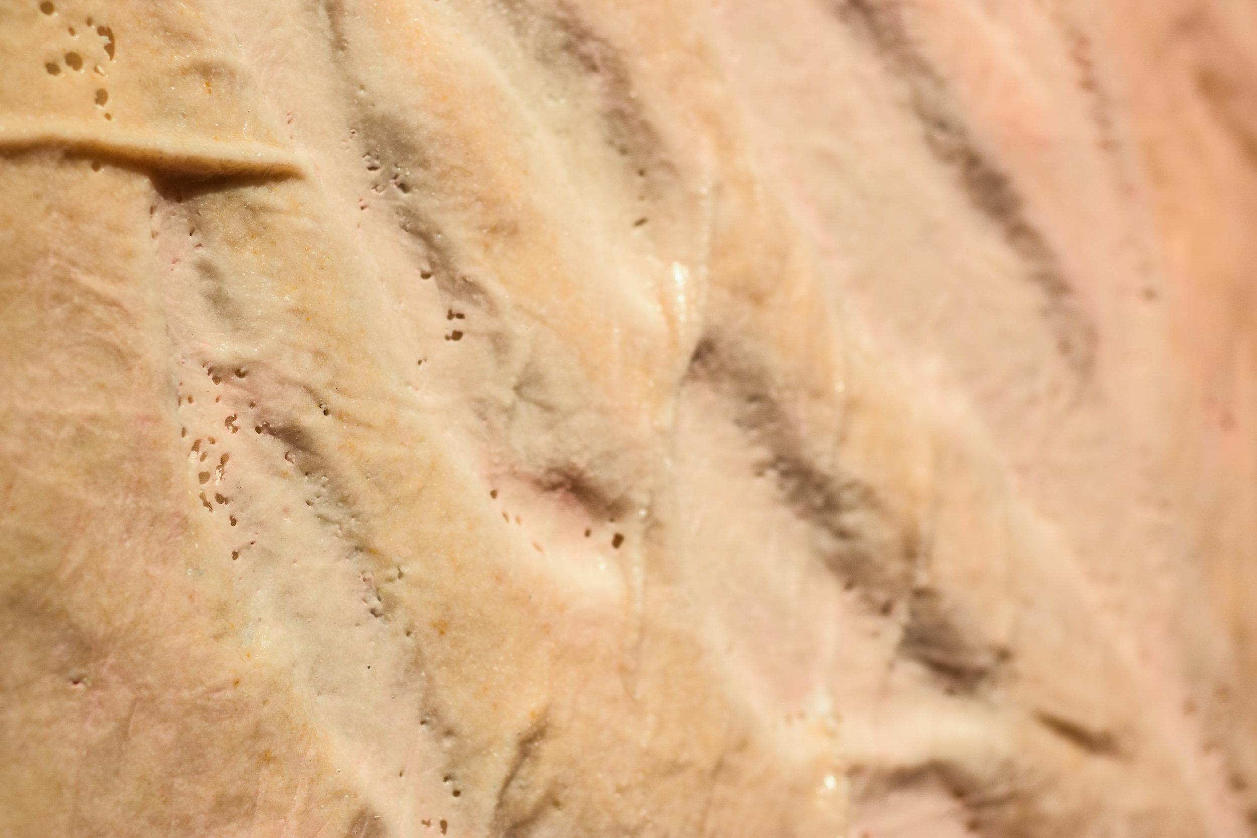 Strech Marks Close-up.jpg