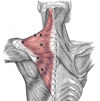 Trigger Point Therapy -