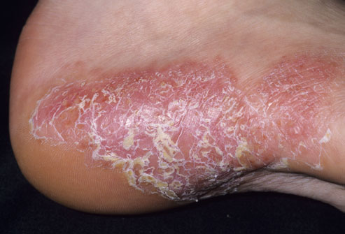 This type of psoriasis often causes thick patches of skin that are covered with silvery-white scale.