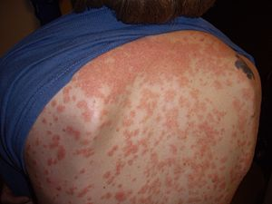 This type of psoriasis causes small spots that can show up all over the skin.