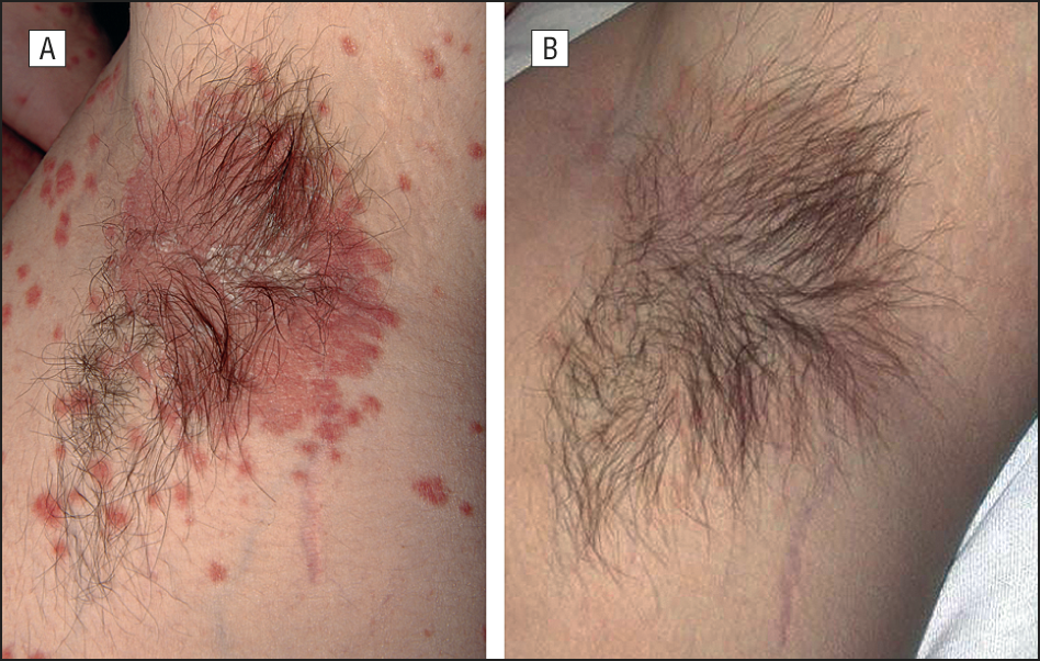 This type of psoriasis develops in areas where skin touches skin, such as the armpit.