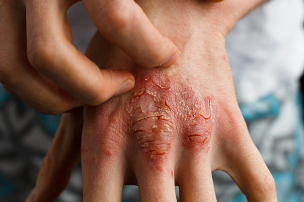 This type of psoriasis can cause the skin to look like it is badly burned.