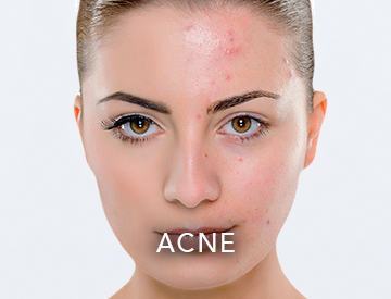 Dermatologists know that letting acne runs its course is not always the best advice.