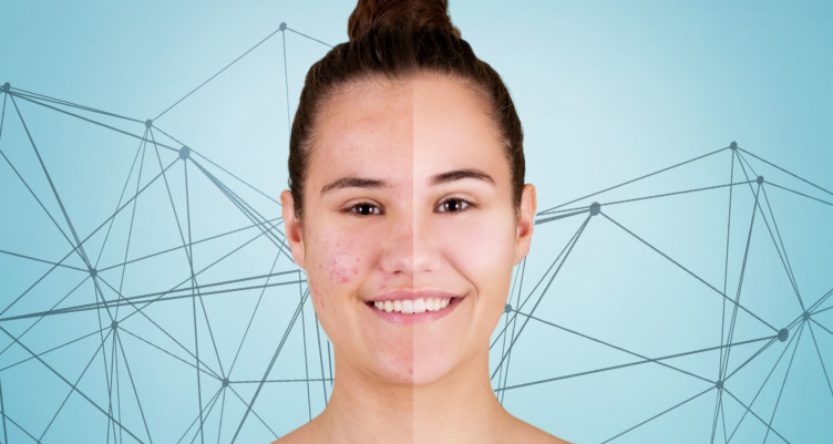 Do you have acne? We can help!