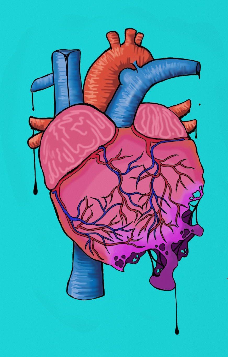 1 - Heart Decay.jpg