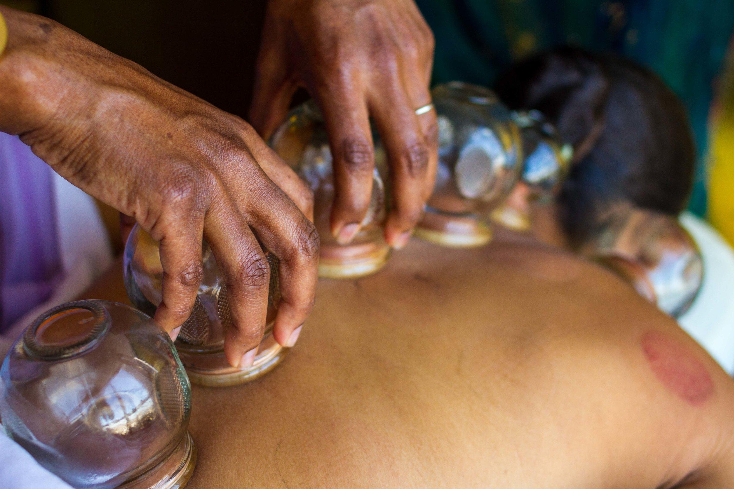 West Palm Beach Acupuncture Treatment