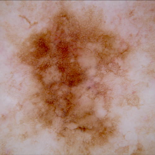Skin Lesion Analysis
