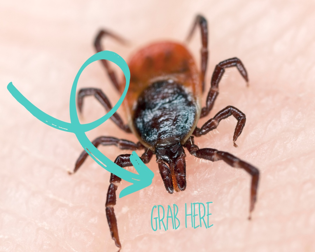 removing a tick - If a tick is attached to your skin, it needs to be removed properly and promptly.Use the tick removal device (link above) to spin and remove the tick. This is the best way, so preventative measures are necessary to purchase ahead of time.If you must, you can use tweezers, but it's not recommended. (Ticks have jagged mouths that are deeply embedded into the skin)With tweezers get as close to the skin as possible, apply steady & even pressure, & gently pull the tick upward from the opposite direction from which it is embedded.