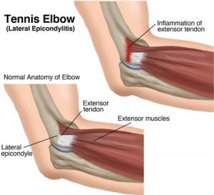Tennis-elbow-or-lateral-epicondylitis-300x273.jpg