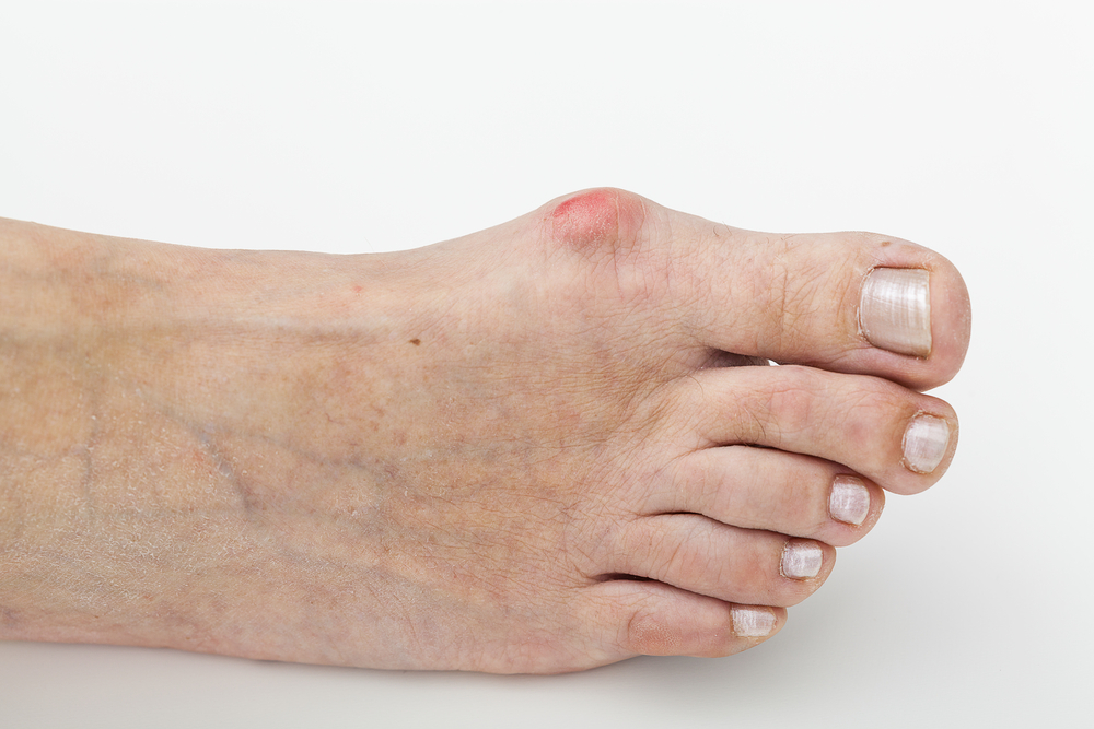 bunion pain relief treatment and correction in westminster, ca