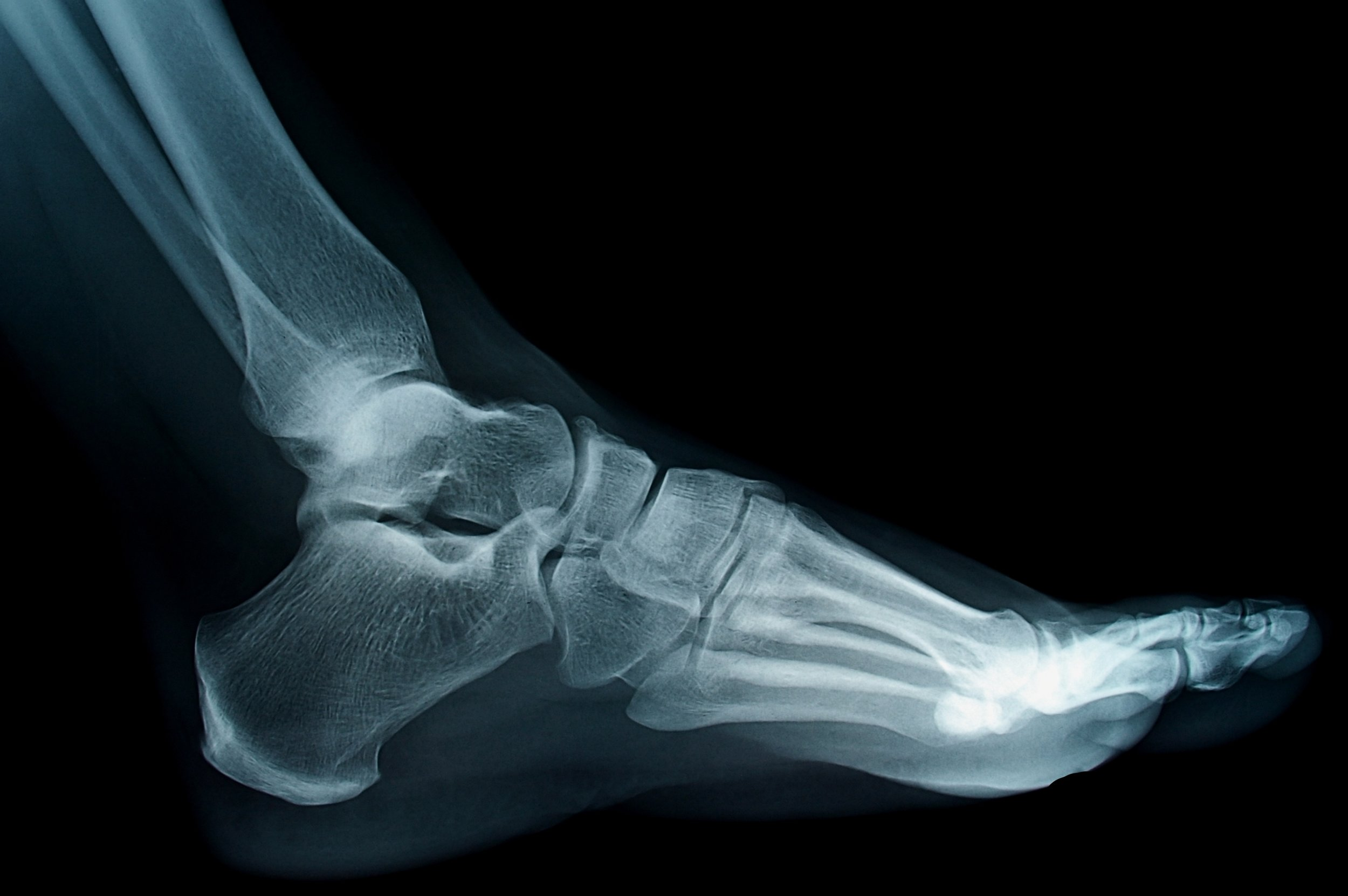 podiatrist treats foot fracture, broken toe and ankle fracture