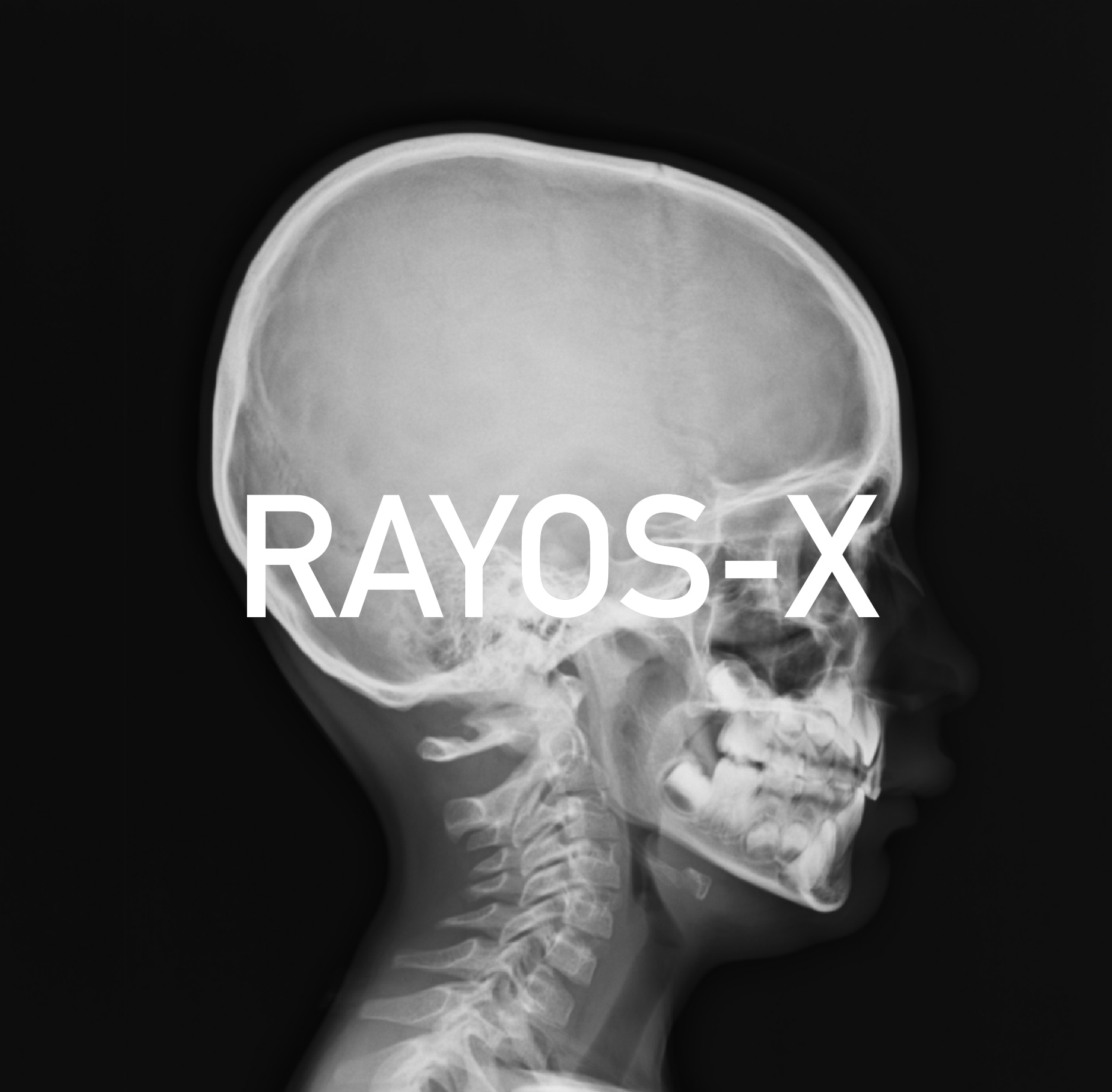 Medical_X-Ray_imaging_WYJ07_nevit_Fotor.jpg