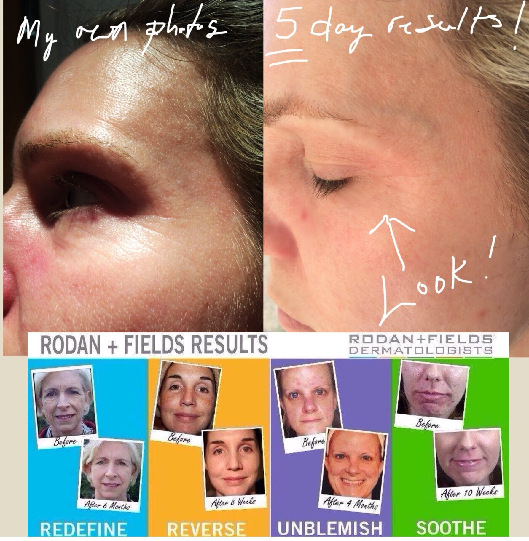 Before After Gallery Healthy Skin Help