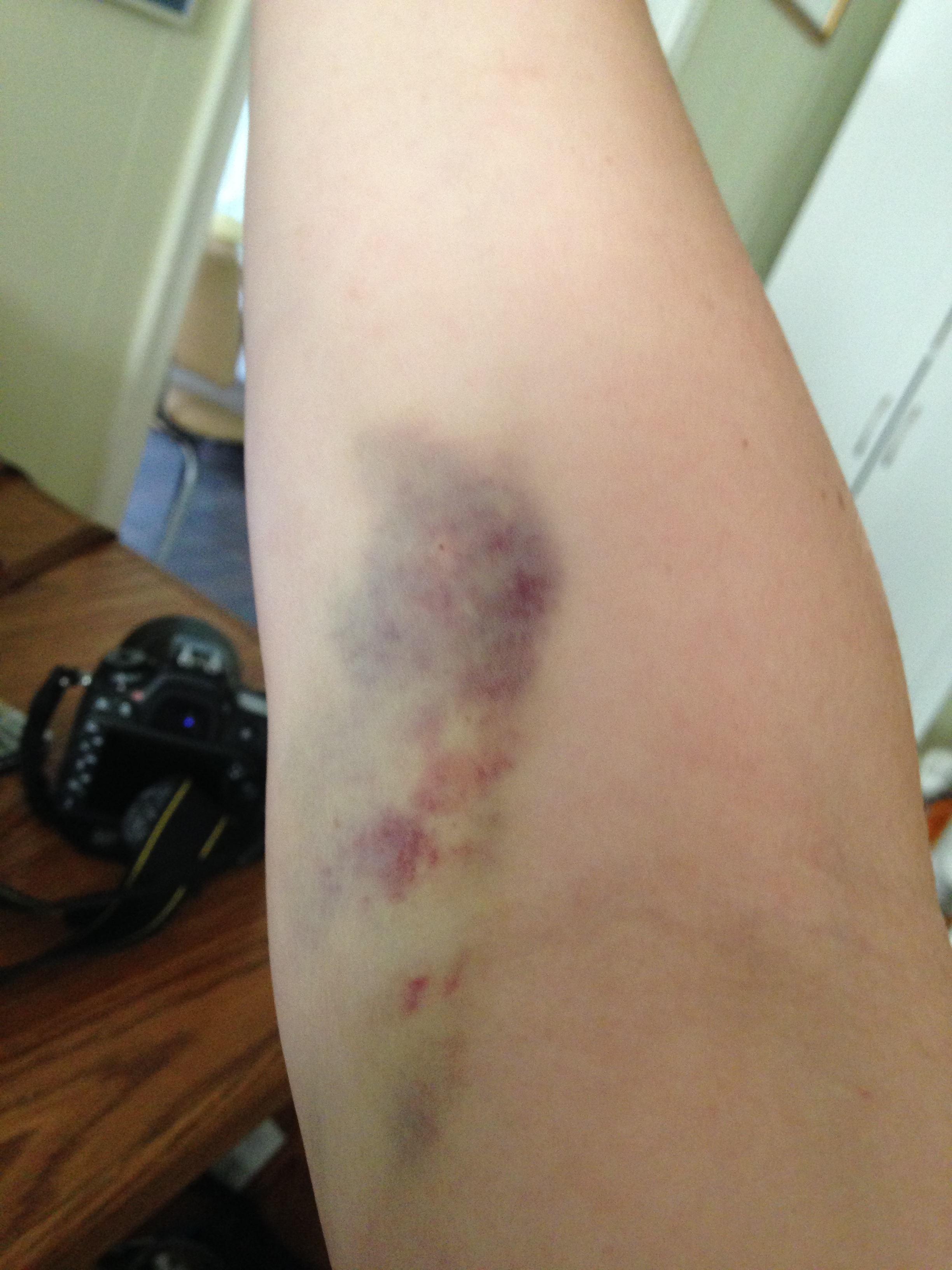 The result of having my blood drawn 7 times in 3 days.