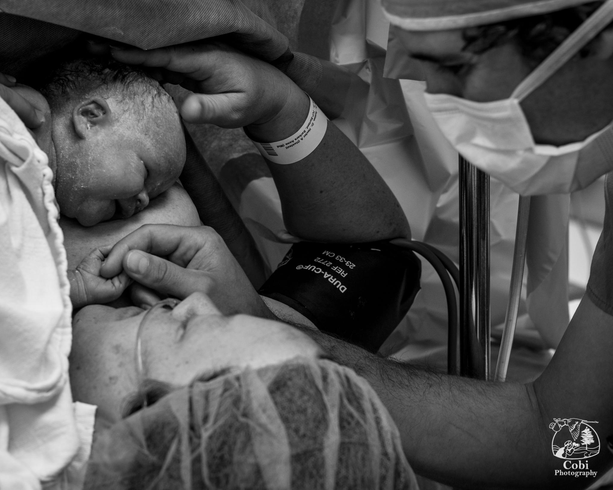 C-section birth at Huntsville District Memorial Hospital