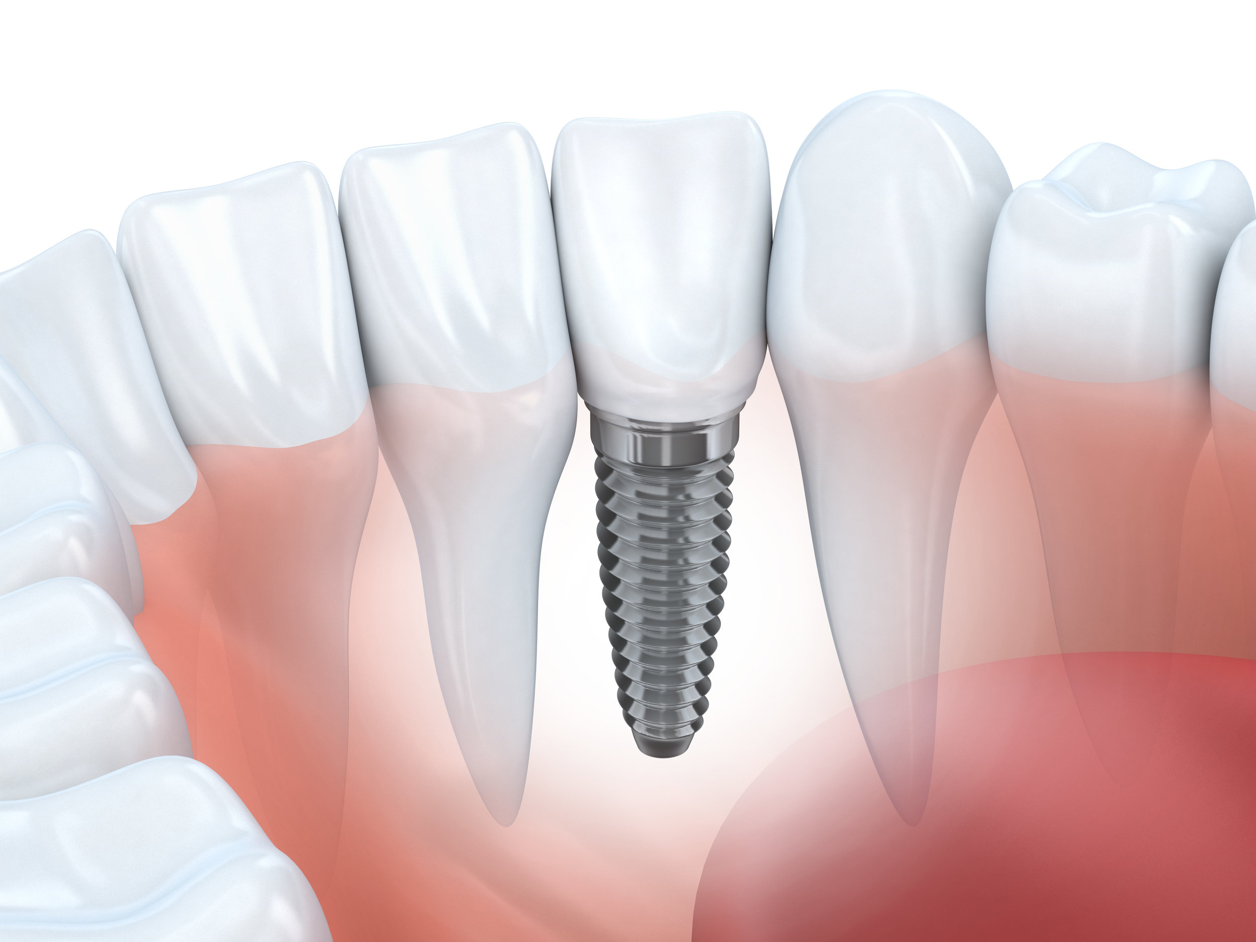 Dental Implants - Dental implants provide a long term solution for replacing missing teeth. Unlike fixed bridges or removable dentures, implants will not affect your neighboring healthy teeth ore lead to bone loss in the jaw.