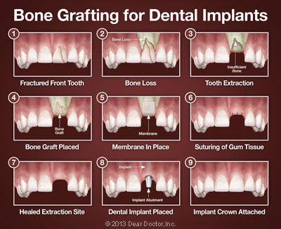 bone-grafting-for-dental-implants.jpg