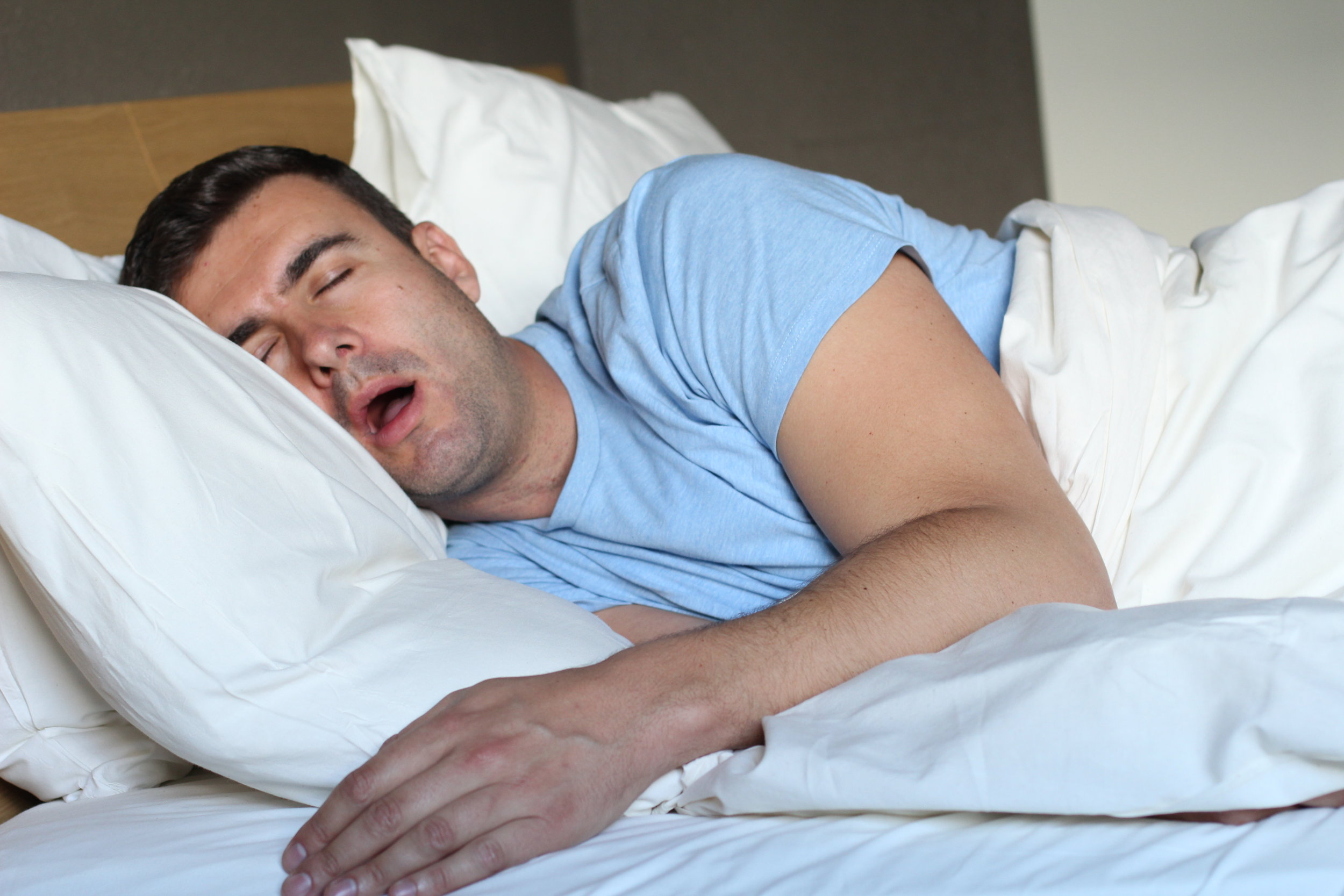 Snoring & Sleep Apnea - Excess tissue in the back of the throat may need to be removed in certain individuals with sleep apnea.