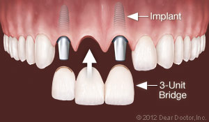 implants-replace-multiple-teeth.jpg