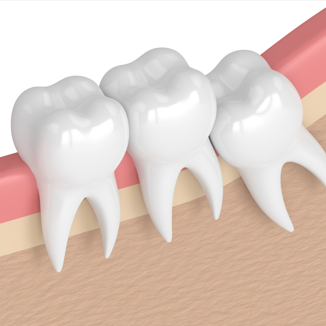 wisdom teeth sharma oral surgery charlotte nc