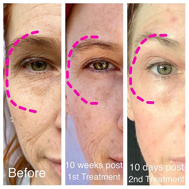 Look at the improvement in her eye hooding! A second treatment is necessary for best results! . . . Fibroblast Treatment reduces, shrinks, smooths the loose skin by harnessing the benefits of plasma flash. Tighten skin and softens lines and wrinkles with 1-3 treatments. Excellent for sagging or loose skin on the: ⚡️eyelids ⚡️under-eye bags ⚡️crows feet ⚡️neck ⚡️smokers lines/upper lip ⚡️lower lip ⚡️laugh lines ⚡️sagging jowls ⚡️stomach ⚡️arms ⚡️above the knee  Results last 5+ years! . . . #beforeandafter #fibroblast #plasma #facelift #celebrityinjector #nonsurgicalskintightening #plasmafibroblast #plasmalift #nonsurgicalblepharoplasty #austin #texas #atx #atxmedspa #atxsalon #aesthetics #eyelift #eyeliftsurgery #eyelifting #wrinkles #crowsfeet #botox #filler #youth #skincare #smilelines #lipaugmentation #lipflip #plasmalipflip #scars #stretchmarks