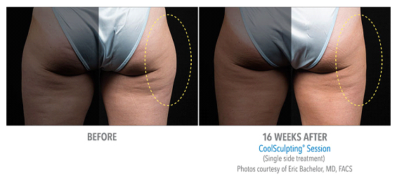 coolsculpting-treatment1.jpg