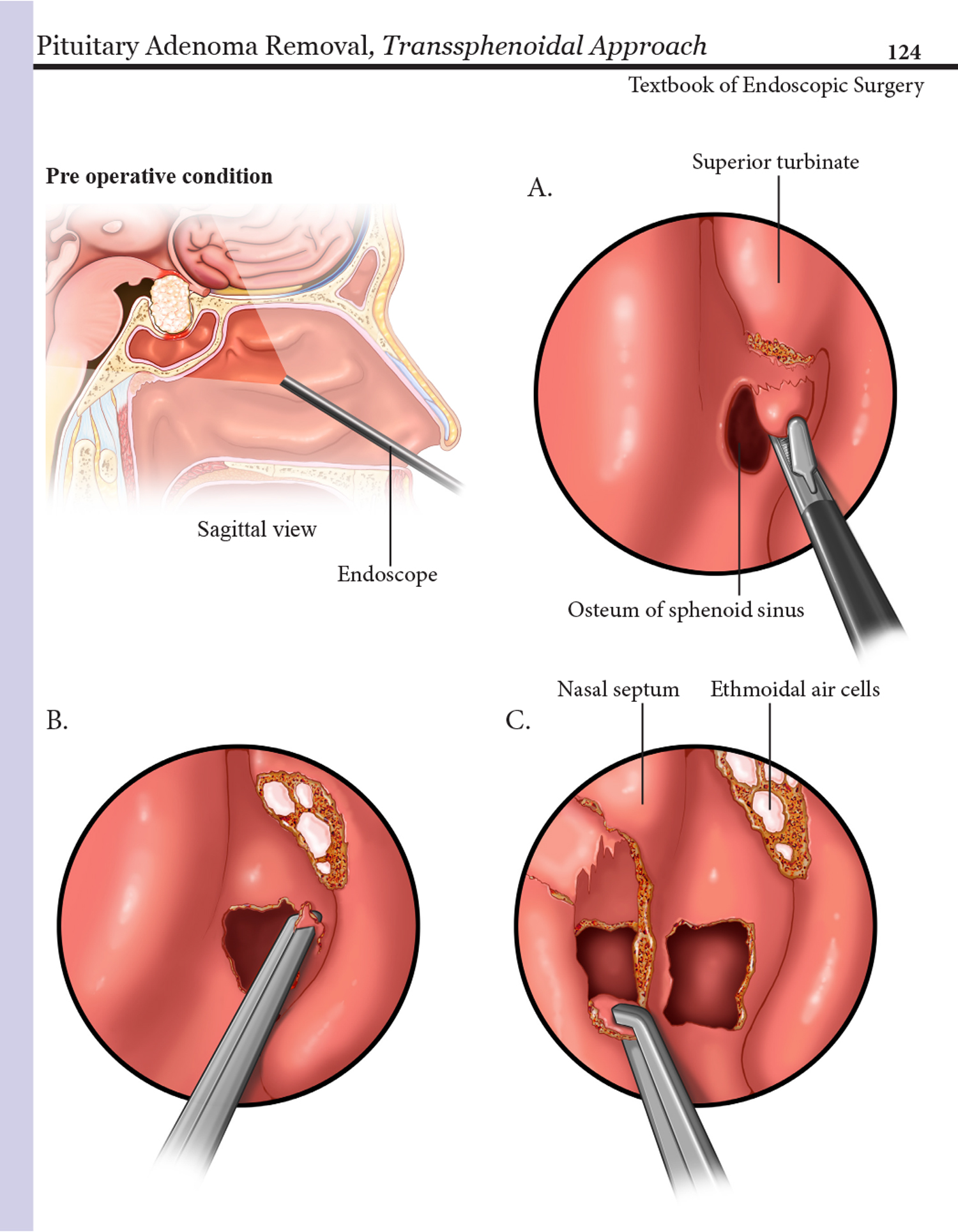 Ptuitary1.jpg