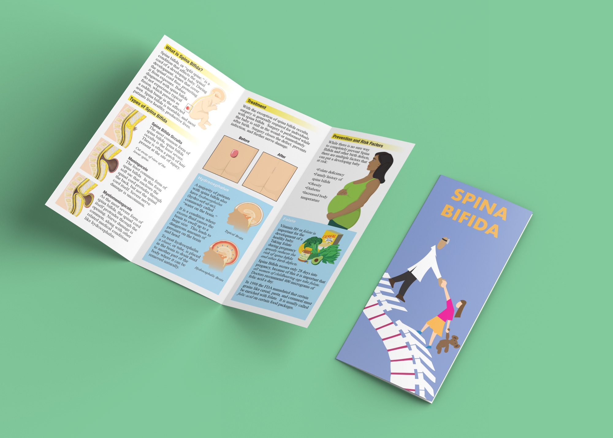 Spina Bifida Brochure