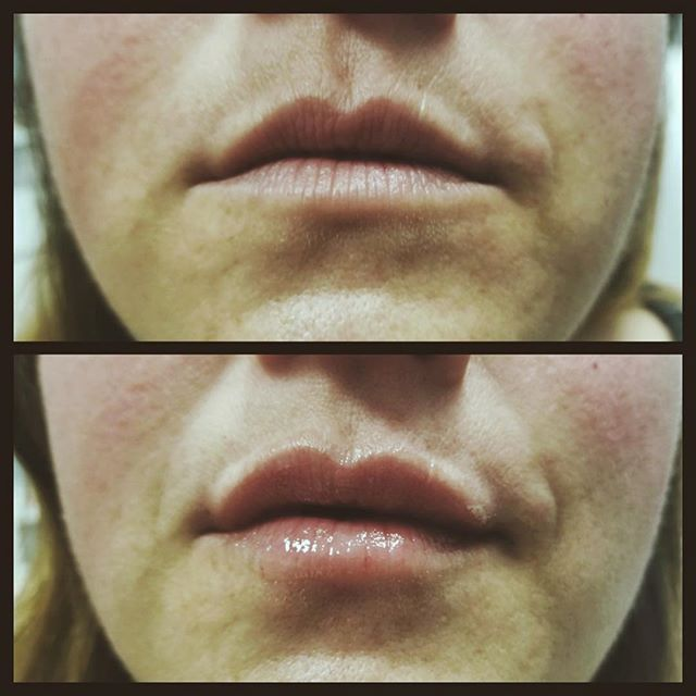 Pout ⠀⠀ 💋Pouty is the new sexy. 💋This beauty wanted to keep her natural lip shape but add a bit more pout. 💋Call today and let's get you the pout your looking for. ⠀⠀ #lips #beautiful #fashion #selfie #girl #lipstick #me #face #instagood #model #smile #pretty #mua #instalike #mac #happy #photooftheday #life #fulllips #kyliejenner #hot #women #dallastexas #dallasmedspa #friscomedspa #prospertx #celinatexas #lipfiller #infiniteskinbeautywellness