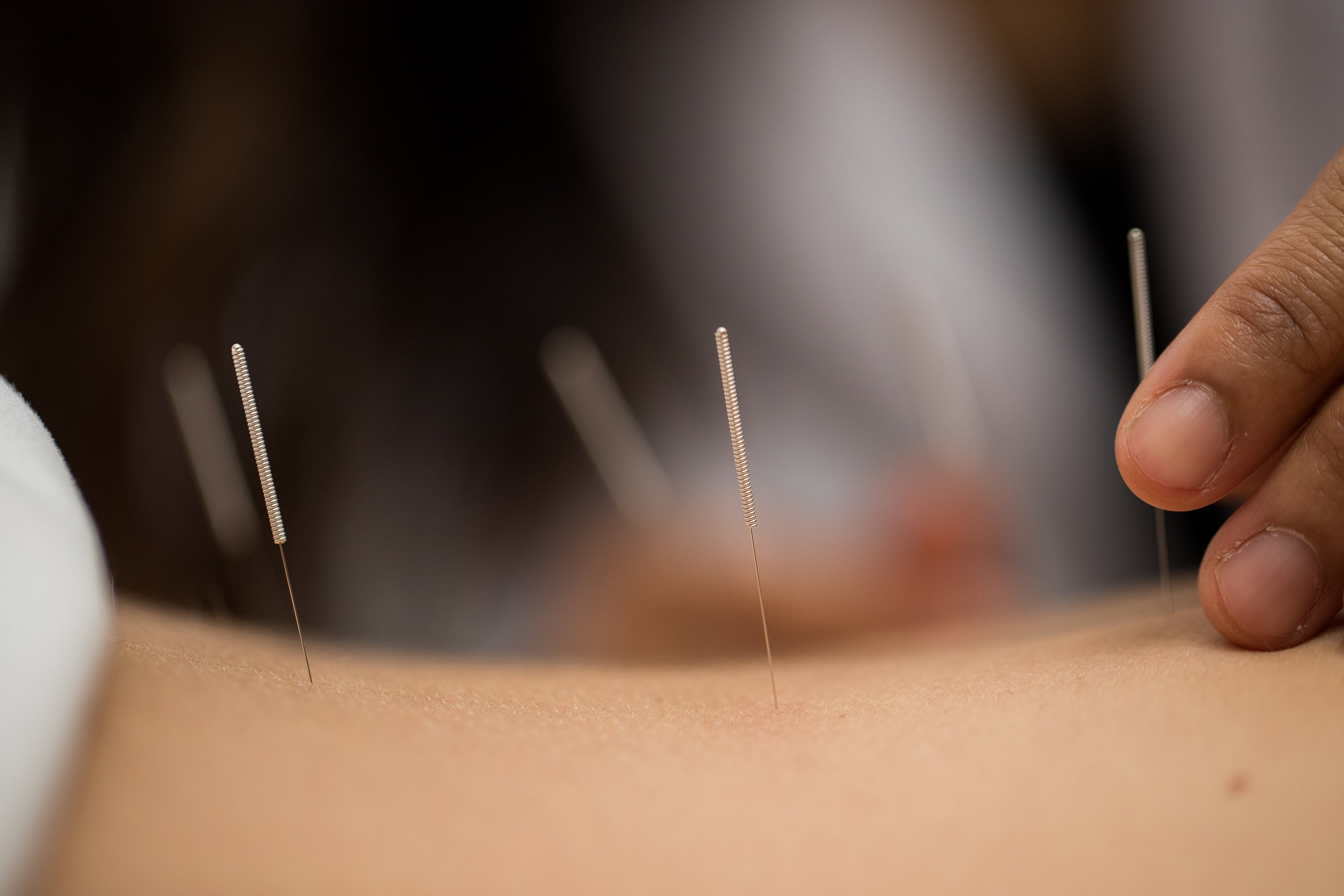 What does science say about acupuncture? - ● MRI readings show observable changes in the brain.● Thermal imaging reveals reduction in inflammation.● Doppler ultrasounds show an increase in blood circulation