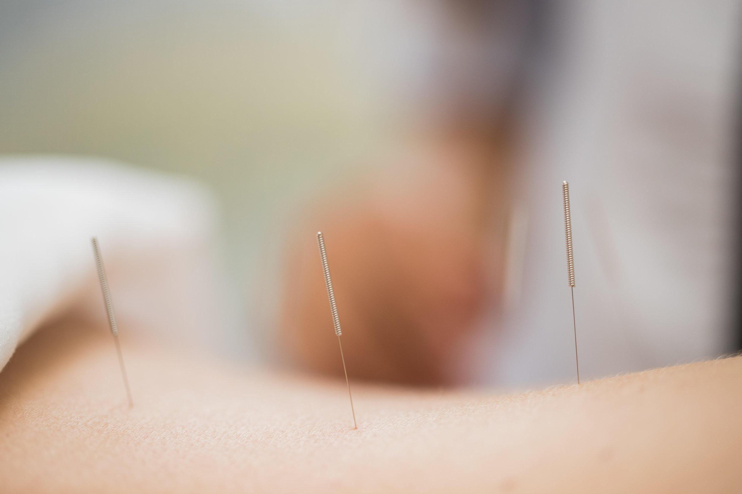 Safe and Gentle Acupuncture Treatments