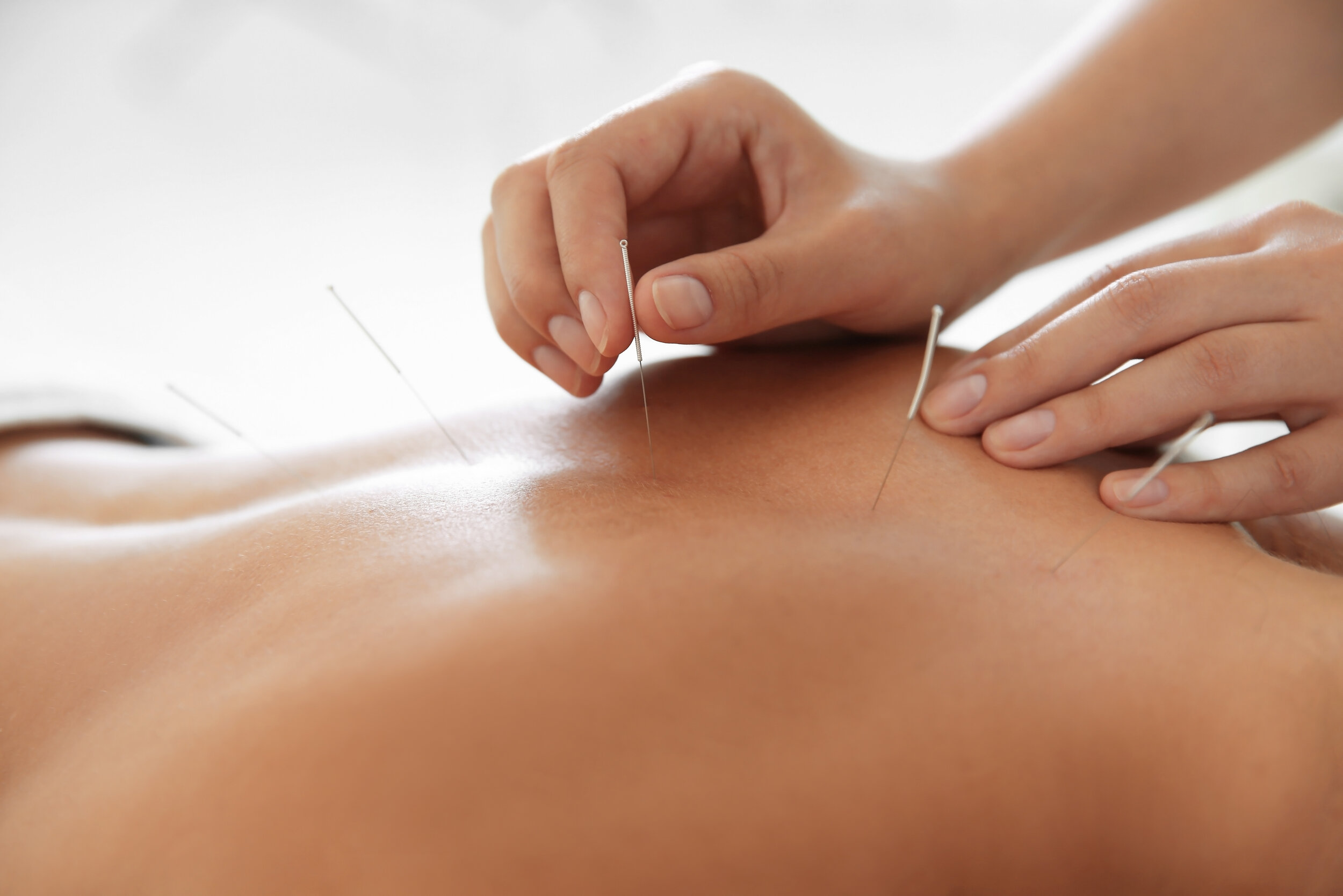 Medical Acupuncture — Lincoln Family Medicine Center